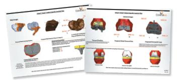 conforMIS brochure